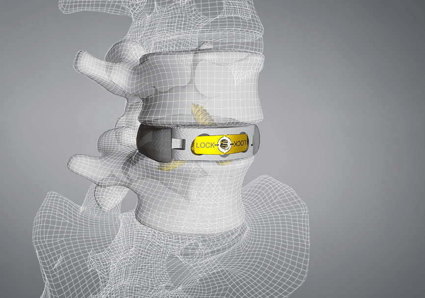 CoreLink M3™ Stand-Alone Anterior Lumbar (ALIF) System Receives 510(k) Clearance
