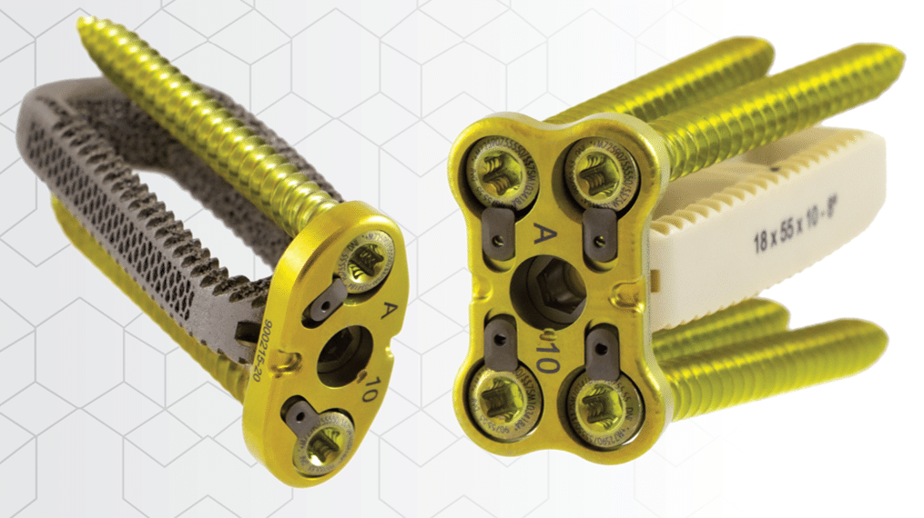 CoreLink Introduces Oro Lateral Plate System Designed for